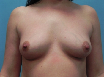 Breast Augmentation Before Frontal .jpg