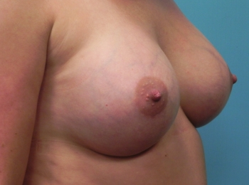 Breast Augmentation turn After.jpg