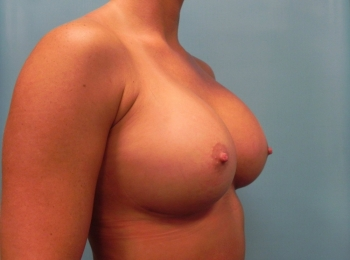 Breast Augmentation  After Turn.jpg