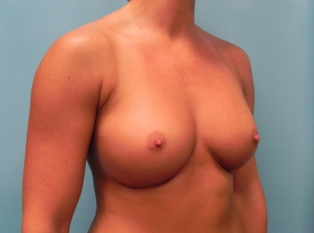 Breast Augmentation Before Turn.jpg