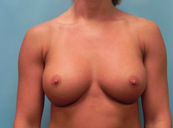Breast Augmentation Before Frontal.jpg