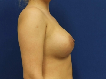 Breast Augmentation After Side.jpg
