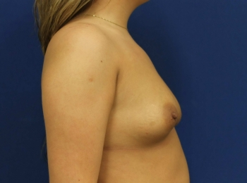 Breast Augmentation Before Side.jpg