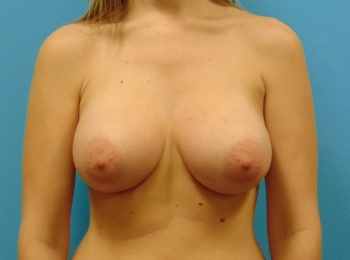 Breast-Augmentation-After-Procedure-Front-View-1