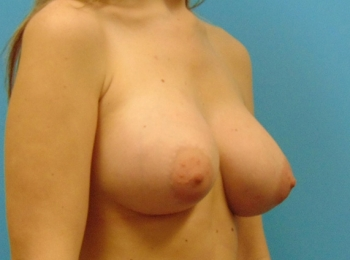 Breast-Augmentation-After-Procedure-Turn-View-2