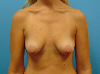 Breast-Augmentation-Before-Procedure-Front-View
