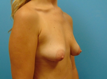 Breast-Augmentation-Before-Procedure-Turn-View