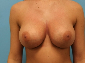 AFTER FRONTAL BREAST.jpg