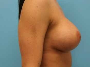 AFTER  SIDE BREAST (1).jpg