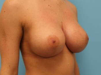 AFTER TURN BREAST.jpg