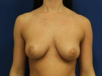 BEFORE FRONTAL BREAST (2).jpg