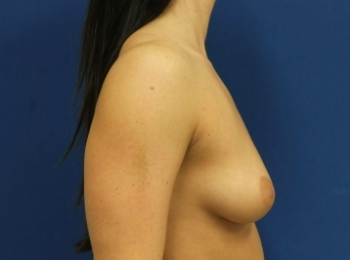 BEFORE SIDE BREAST (2).jpg