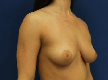 BEFORE TURN BREAST (1).jpg