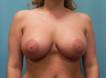Breast Augmentation AFTER FRONTAL BREAST .jpg
