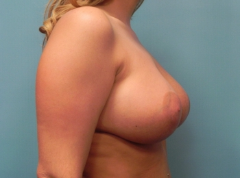 Breast Augmentation AFTER SIDE BREAST.jpg