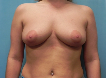 Breast Augmentation BEFORE FRONTAL BREAST.jpg