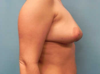 Breast Augmentation BEFORE SIDE BREAST.jpg