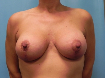 Breast-Implant-After-Procedure-Front-View