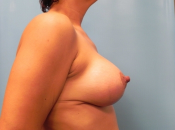 Breast-Implant-After-Procedure-Side-View