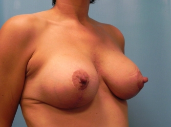 Breast-Implant-After-Procedure-Turn-View