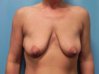 Breast-Implant-Before-Procedure-Front-View