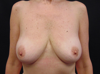 breast-lift-with-implants-1