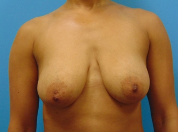 Front Before Breast Lift with Implants