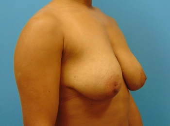 Oblique Before Breast Lift with Implants