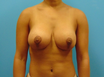 Front After Breast Lift with Implants