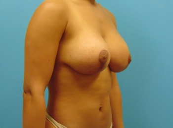 Oblique After Breast Lift with Implants
