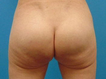 Buttock-Implant-After-Procedure-Back-View