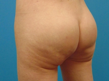 Buttock-Implant-After-Procedure-Turn-View