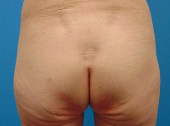Buttock-Implant-Before-Procedure-Back-View
