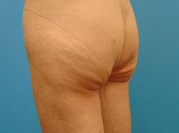 Buttock-Implant-Before-Procedure-Turn-View