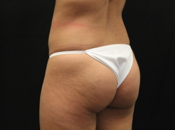 NS-Implants-Before