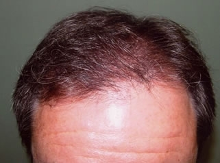 Hair Transplant Top After