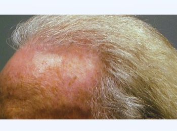 Hair Transplant Turn After