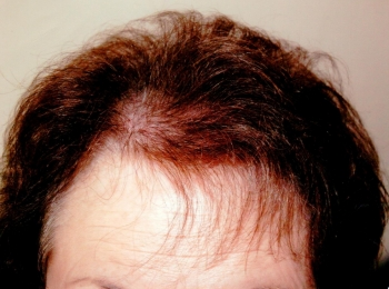 Hair Transplant Frontal After