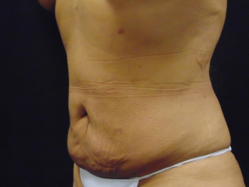 Lipo-Abdomen-Side-After