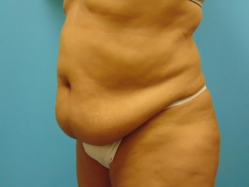 Lipo-Abdomen-Side-Before