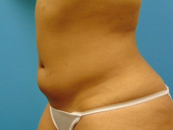 Lipo360 | Abdomen Before & After