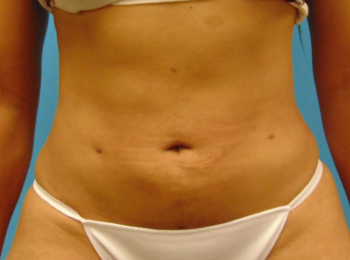 lipo-after-1