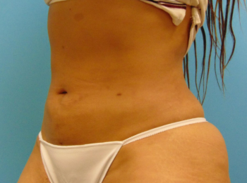 lipo-after-2