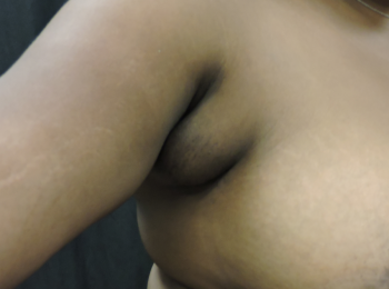 underarm-lipo-before-extended