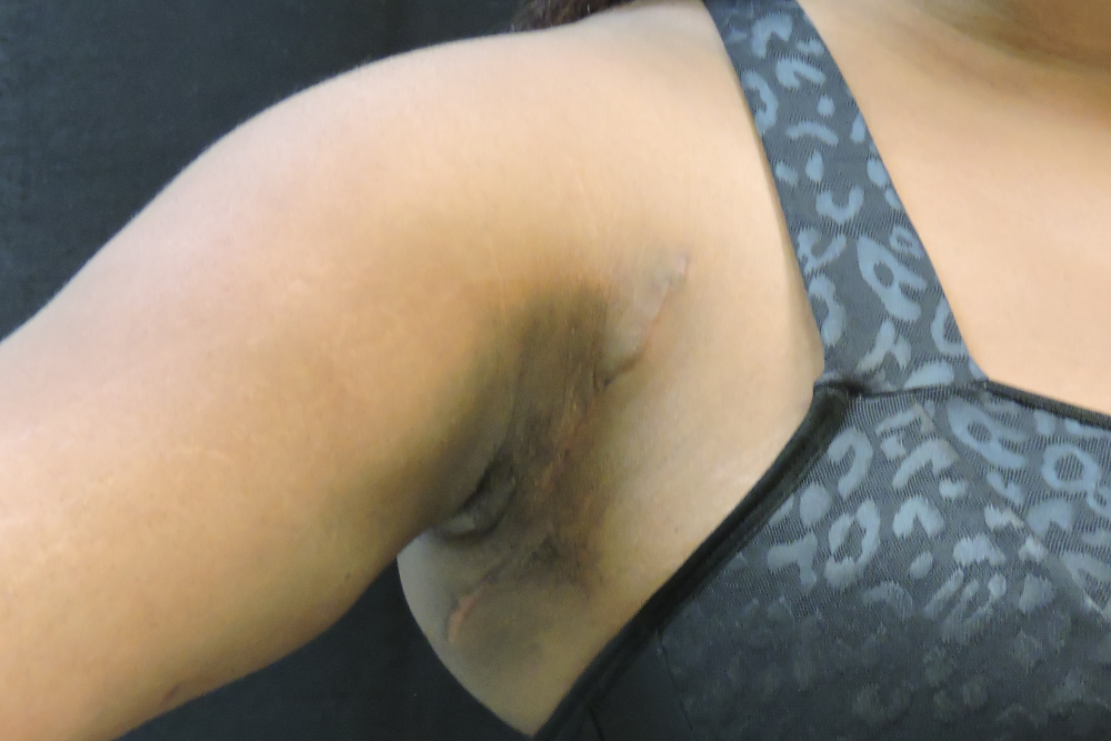 underarm-lipo-after-extended