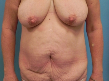Abdominoplasty Before Frontal.jpg