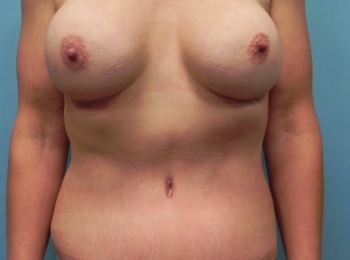 Post Bariatric - Front After Procedure