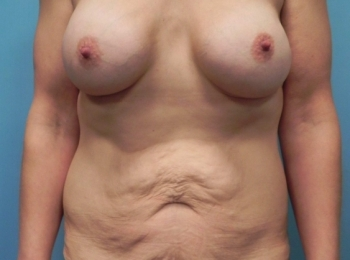 Post Bariatric - Front Before Procedure