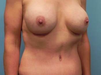 Post Bariatric - Turn After Procedure