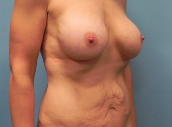 Post Bariatric Turn Before Procedure